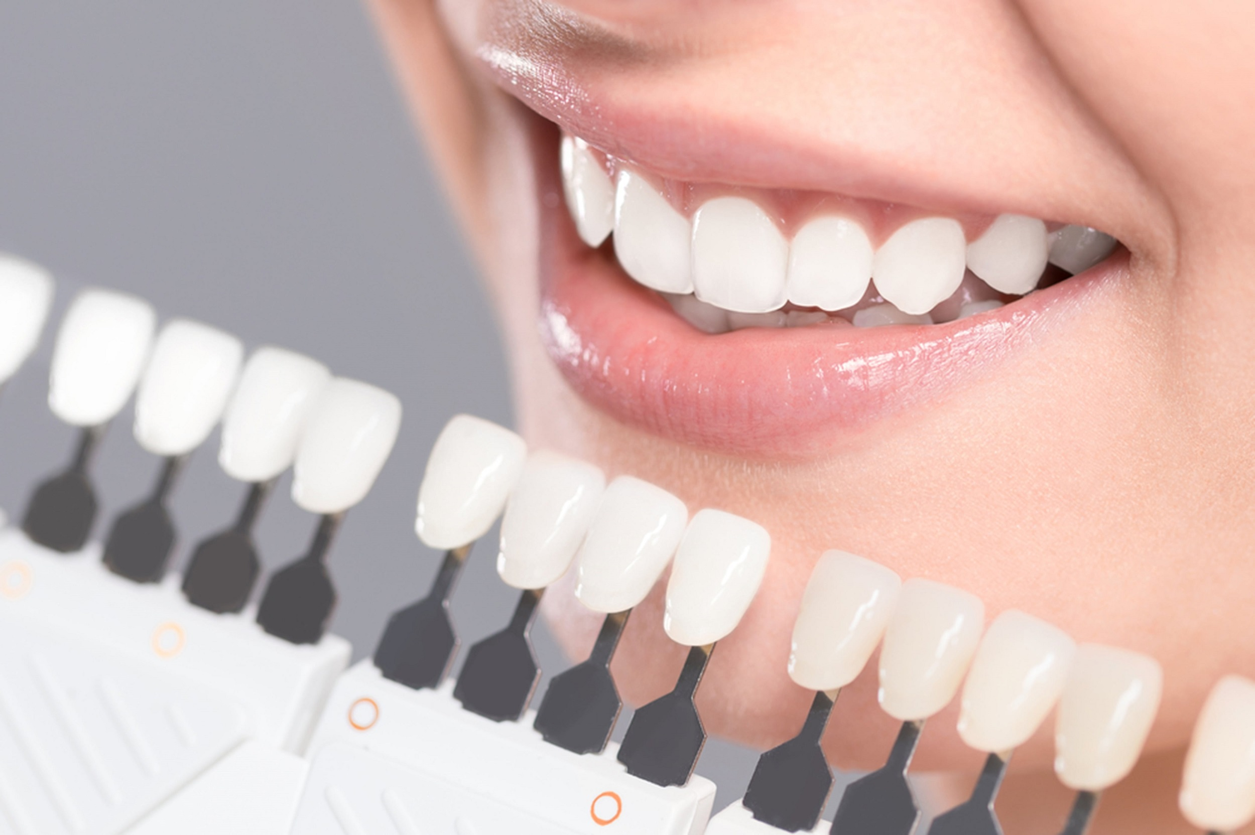 how can veneers help you improve your smile