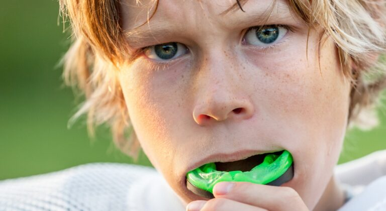 when should i replace my sports mouth guard